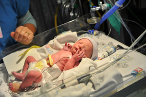 Premature baby girl in an Neonatal ICU bed.
